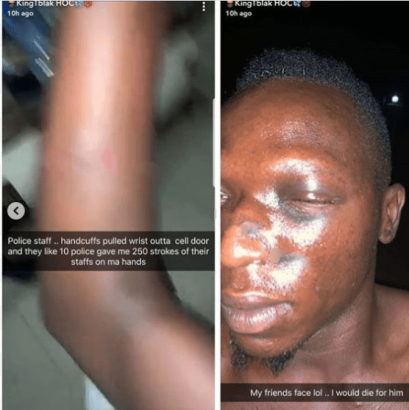 Kingtblakhoc allegedly assaulted by policemen lailasnews 2