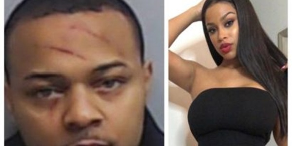 Image result for Bowwow's girlfriend opens up on inflicting injury on him