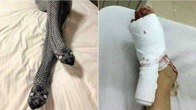 Image result for Husband broke wife's leg thinking it was a snake