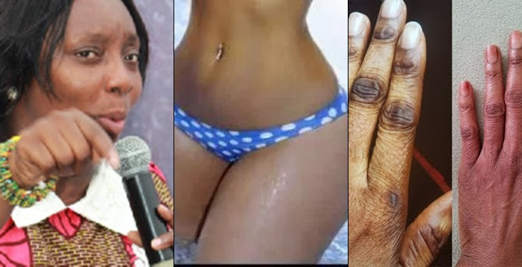 Ladies who bleach won't last in marriage - Counselor Charlotte Oduro