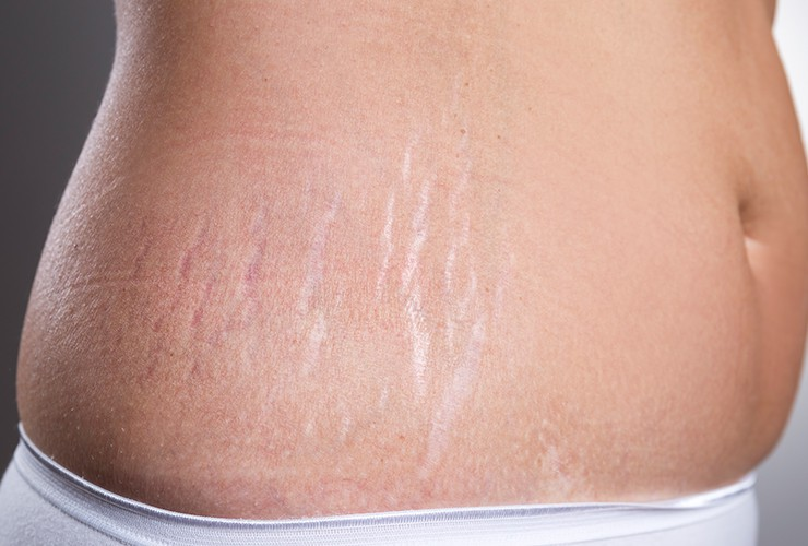 Effective Natural Ways To Erase Stretch Marks From Your Body