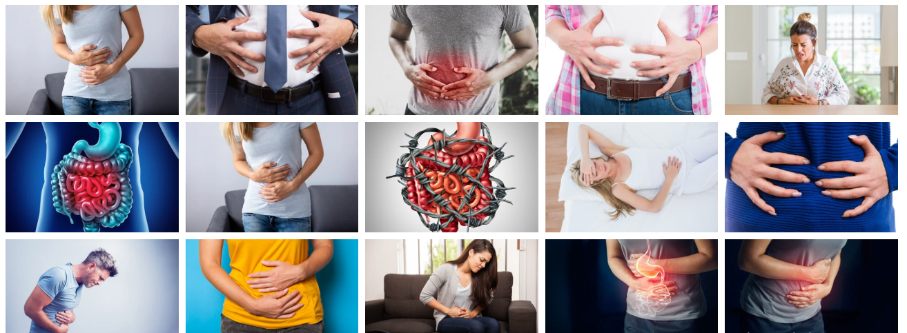 10 Natural and Herbal Remedies for Indigestion
