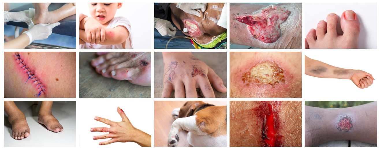 10 Natural Ways To Treat An Infected Wound On Your Body
